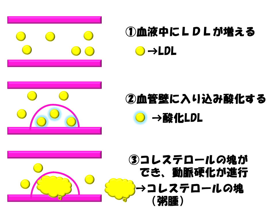 LDL作用機序